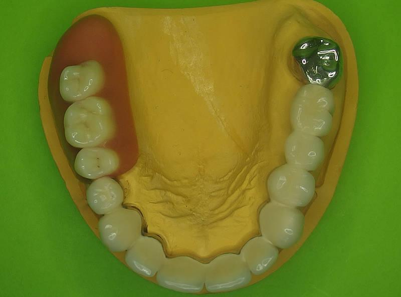 Leistungen: dental keramik becker